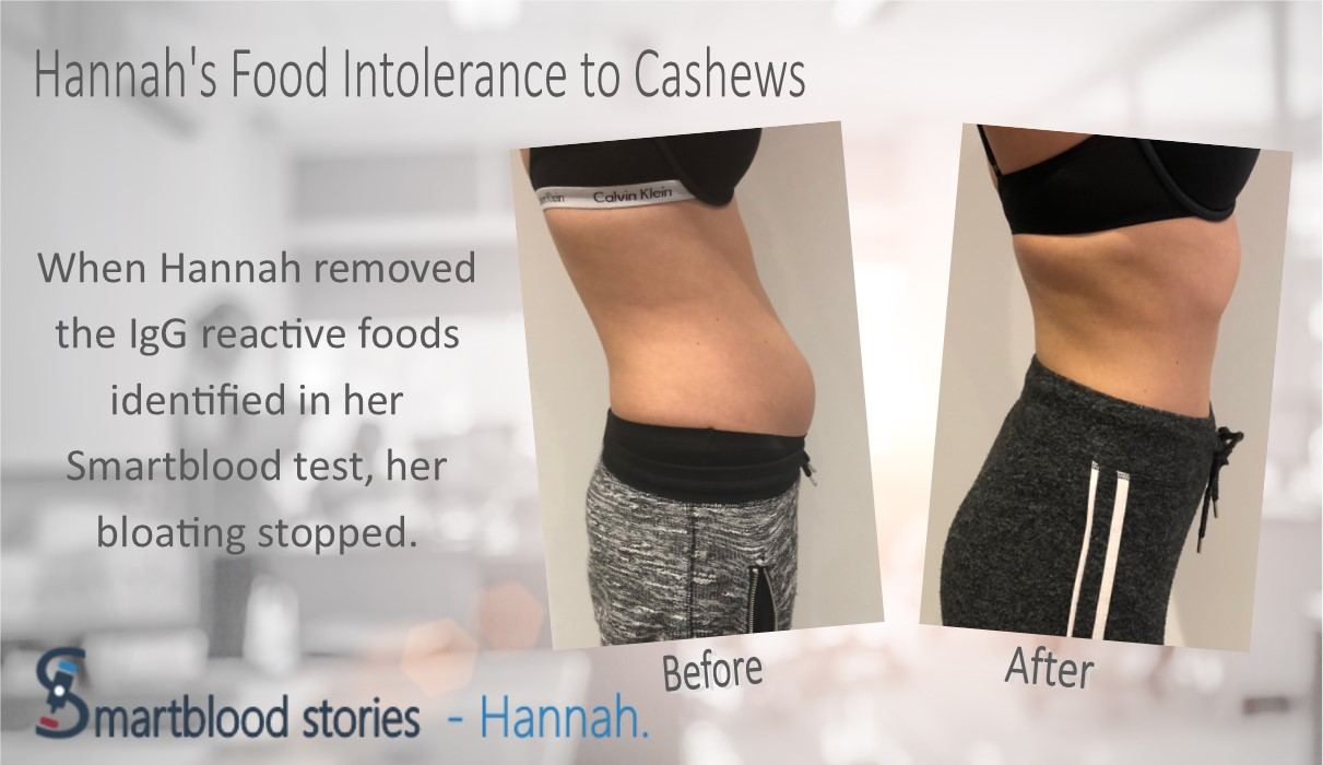 When Hannah removed her IgG reactive nuts seeds and beans her bloating stopped